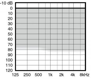 аудиограмма слухового аппарата Widex Aikia AK-M