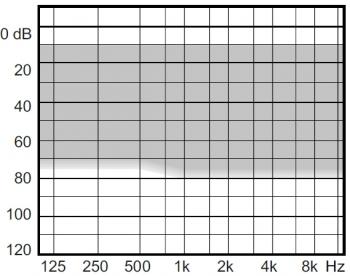 аудиограмма слухового аппарата Widex Clear220 C2-CIC