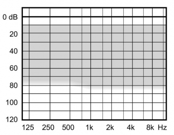 аудиограмма слухового аппарата Widex Clear220 C2-m