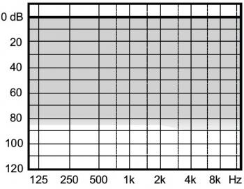 аудиограмма слухового аппарата Widex Clear330 C3-PA RIC M