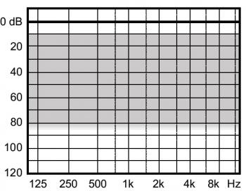 аудиограмма слухового аппарата Widex Clear330 C3-XP