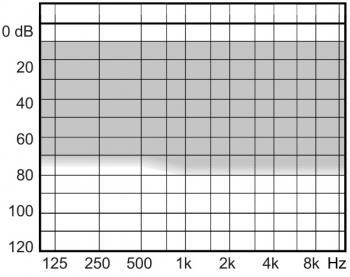 аудиограмма слухового аппарата Widex Clear440 C4-CIC