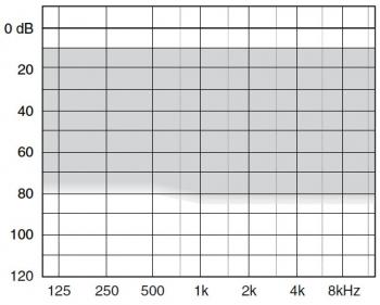 аудиограмма слухового аппарата Widex Clear440 C4-M