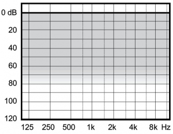 аудиограмма слухового аппарата Widex Clear440 C4-PA RIC M