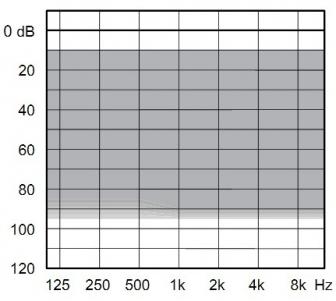 аудиограмма слухового аппарата Widex Dream D100-FA