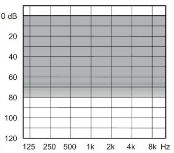 аудиограмма слухового аппарата Widex Dream D100-PA