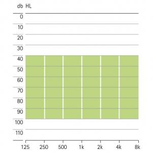 аудиограмма слухового аппарата Phonak Exelia FS P