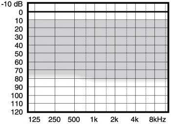 аудиограмма слухового аппарата Widex Menu ME10-m