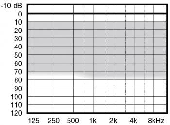 аудиограмма слухового аппарата Widex Menu ME5-CIC+