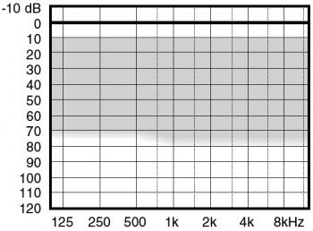 аудиограмма слухового аппарата Widex Menu ME3-CIC II C-TR