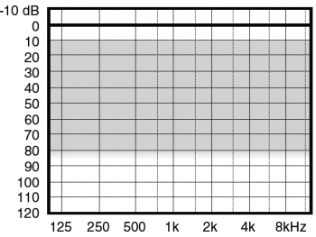 аудиограмма слухового аппарата Widex Menu ME3-X+