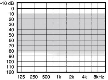 аудиограмма слухового аппарата Widex Menu ME5-9