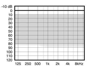 аудиограмма слухового аппарата Widex mind220 m2-9