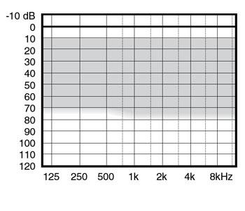 аудиограмма слухового аппарата Widex mind220 m2-CIC