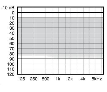 аудиограмма слухового аппарата Widex mind330 m3-9