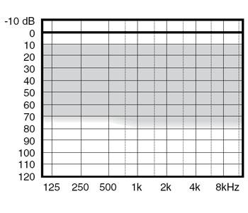 аудиограмма слухового аппарата Widex mind330 m3-CIC