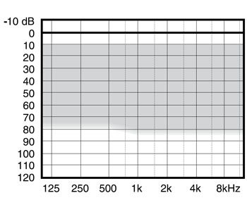 аудиограмма слухового аппарата Widex mind330 m3-m