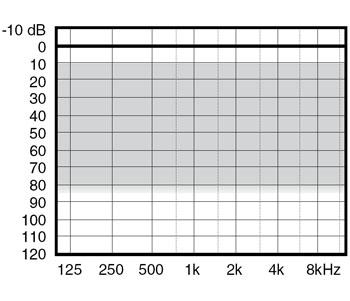 аудиограмма слухового аппарата Widex mind330 m3-X