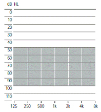 аудиограмма слухового аппарата Phonak Phonak Audeo Q-312-T