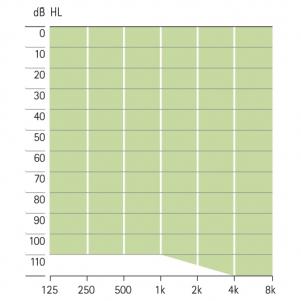 аудиограмма слухового аппарата Phonak Una M AZ