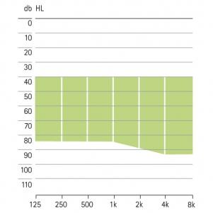 аудиограмма слухового аппарата Phonak Versata ITC-HS P VZ-Petite