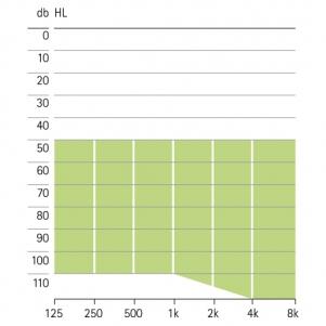 аудиограмма слухового аппарата Phonak Certena Art SP