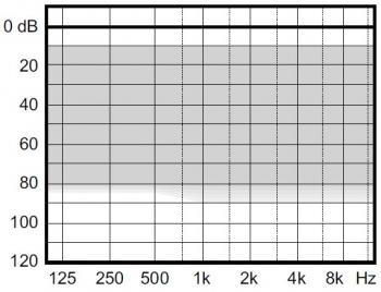 аудиограмма слухового аппарата Widex Clear330 C3-9