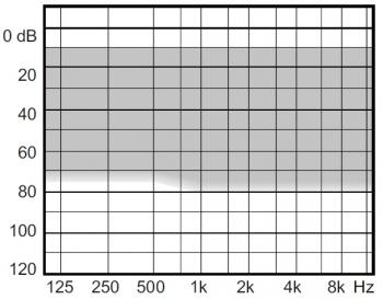 аудиограмма слухового аппарата Widex Clear330 C3-CIC