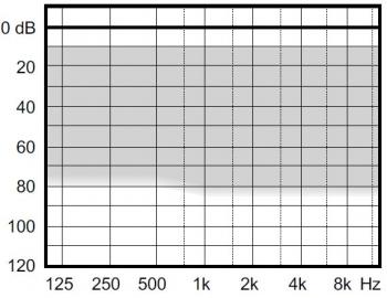 аудиограмма слухового аппарата Widex Clear330 C3-M