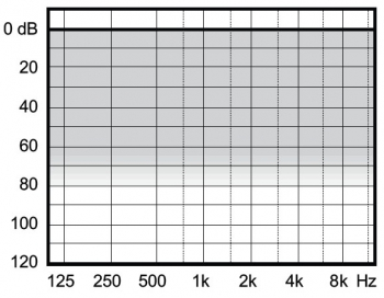 аудиограмма слухового аппарата Widex Clear330 C3-PA