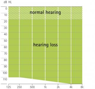 аудиограмма слухового аппарата Phonak CROS H2O