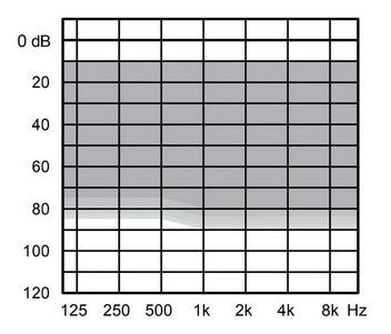 аудиограмма слухового аппарата Widex Evoke E440-CIC