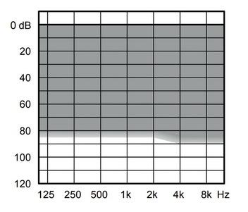 аудиограмма слухового аппарата Widex Evoke E110-PA