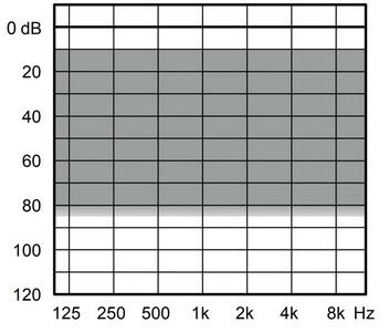 аудиограмма слухового аппарата Widex Evoke E440-XP