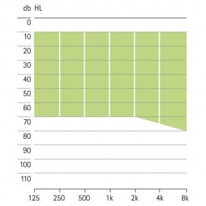 аудиограмма слухового аппарата Phonak Exelia ITC-HS-Petite-VZ