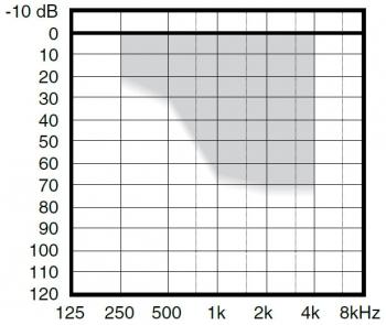аудиограмма слухового аппарата Widex Inteo IN-9e