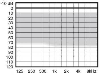 аудиограмма слухового аппарата Widex Menu ME10-CIC IIC