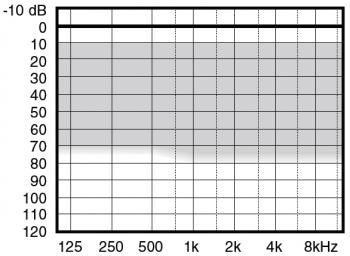 аудиограмма слухового аппарата Widex Menu ME10-CIC IIC-TR