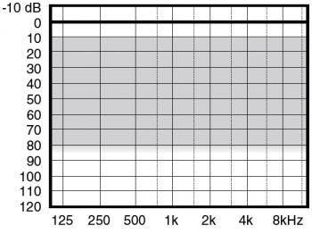 аудиограмма слухового аппарата Widex Menu ME10-X
