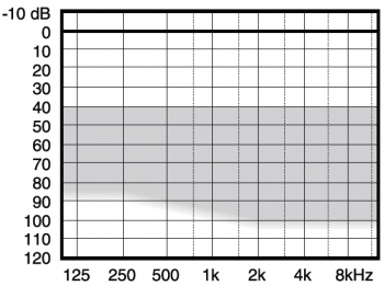 аудиограмма слухового аппарата Widex Menu ME5-19+