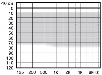 аудиограмма слухового аппарата Widex Menu ME-CIC