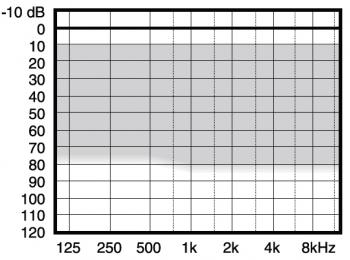 аудиограмма слухового аппарата Widex Menu ME3-M+
