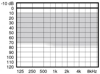 аудиограмма слухового аппарата Widex Menu ME5-CIC