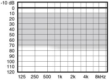 аудиограмма слухового аппарата Widex Menu ME5-CIC II C-TR