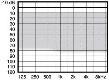 аудиограмма слухового аппарата Widex Menu ME5-m