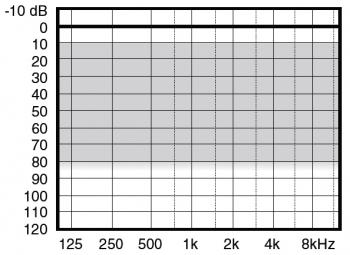 аудиограмма слухового аппарата Widex Menu ME5-X