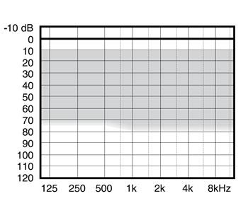 аудиограмма слухового аппарата Widex Mind220 M2-CIC-TR