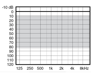 аудиограмма слухового аппарата Widex Mind220 M2-X