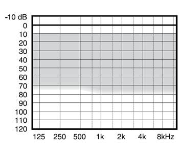 аудиограмма слухового аппарата Widex Mind330 M3-CIC-TR