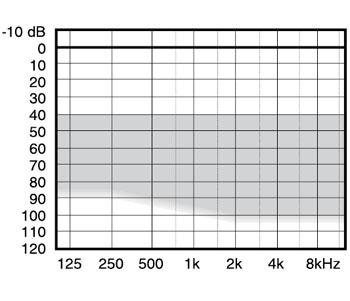 аудиограмма слухового аппарата Widex Mind440 M4-19
